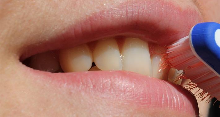 歯磨き粉アレルギーって知ってる?おすすめの無添加歯磨き粉をご紹介