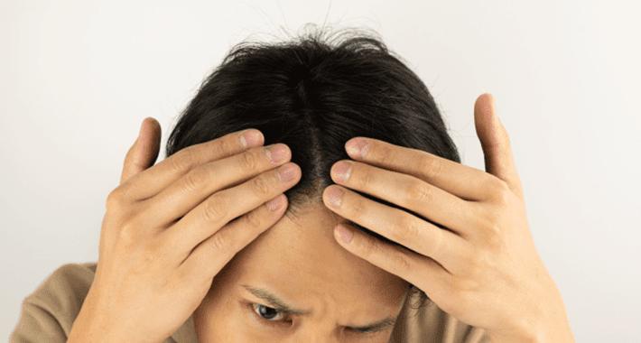 彼氏の薄毛が心配!20代男性にもおすすめな育毛剤3選