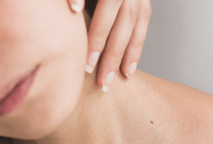 冬に起こりやすい肌トラブル